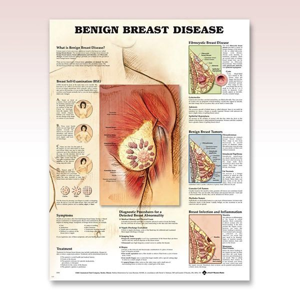 benign tumors breast