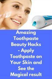 Amazing Toothpaste Beauty Hacks  Tragen Sie Zahnpasta auf Ihre Haut auf und #fashion #style #stylish #love #cute     Source by djklkirt #Amazing #auf #Beauty #fas #hacks #Haut #How to get clear skin overnight simple #Ihre #Sie #Toothpaste #Tragen #und #Zahnpasta