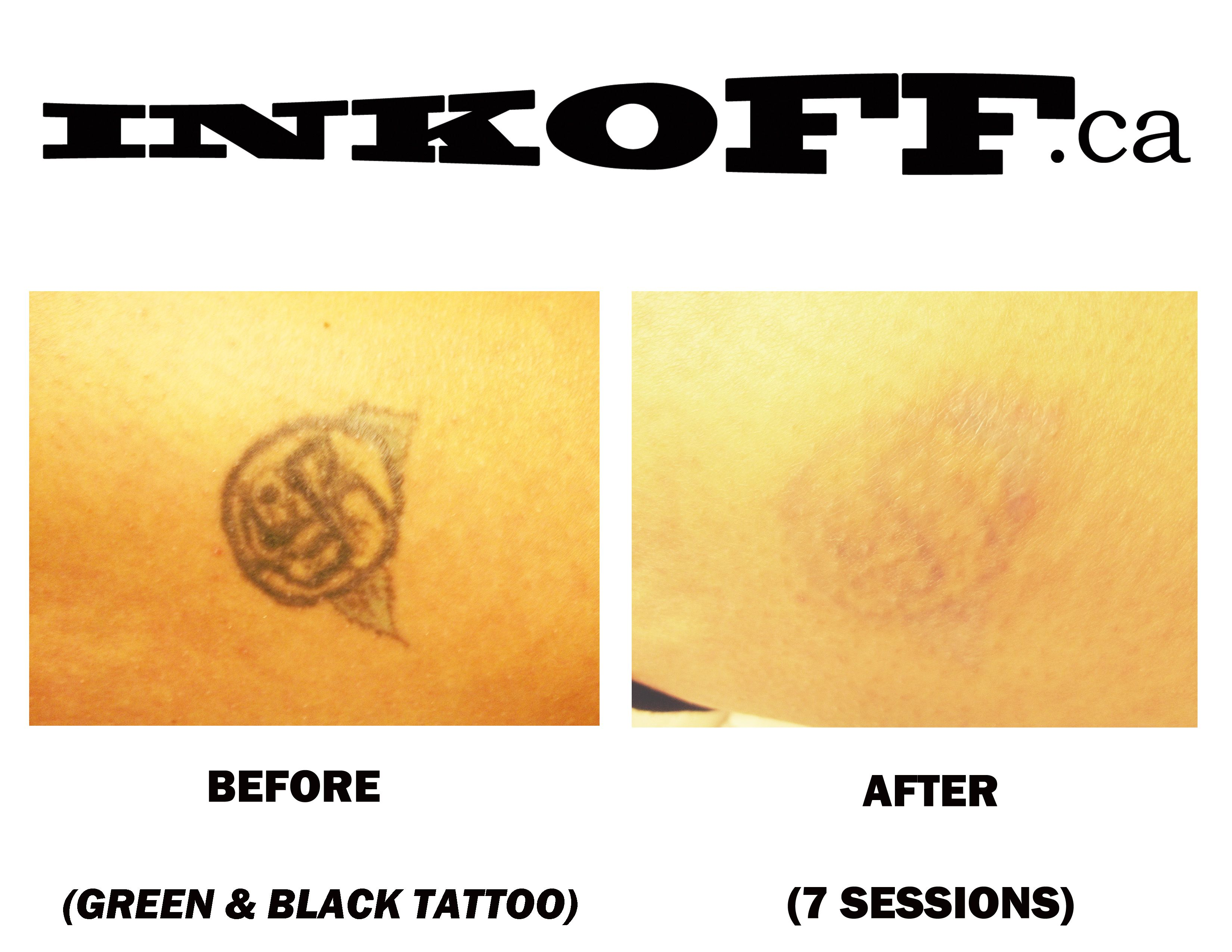 Green and blue tattoo removal beforeafter 7 sessions