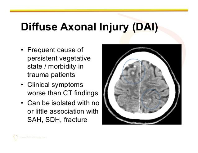 www.RiTradiology.com Diffuse Axonal Injury (DAI)• Frequent ...
