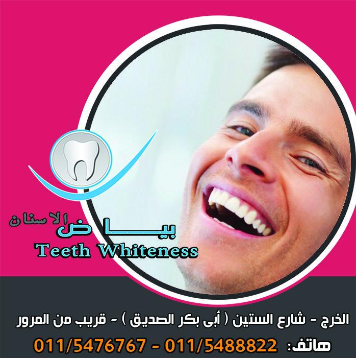 وجود جهاز التقويم الأسلاك ومثبتات التقويم داخل الفم تساعد على تراكم بقايا الطعام و البلاك عليها وعلى الاسنان مما يتطلب جهد وعناية Movie Posters Teeth Movies