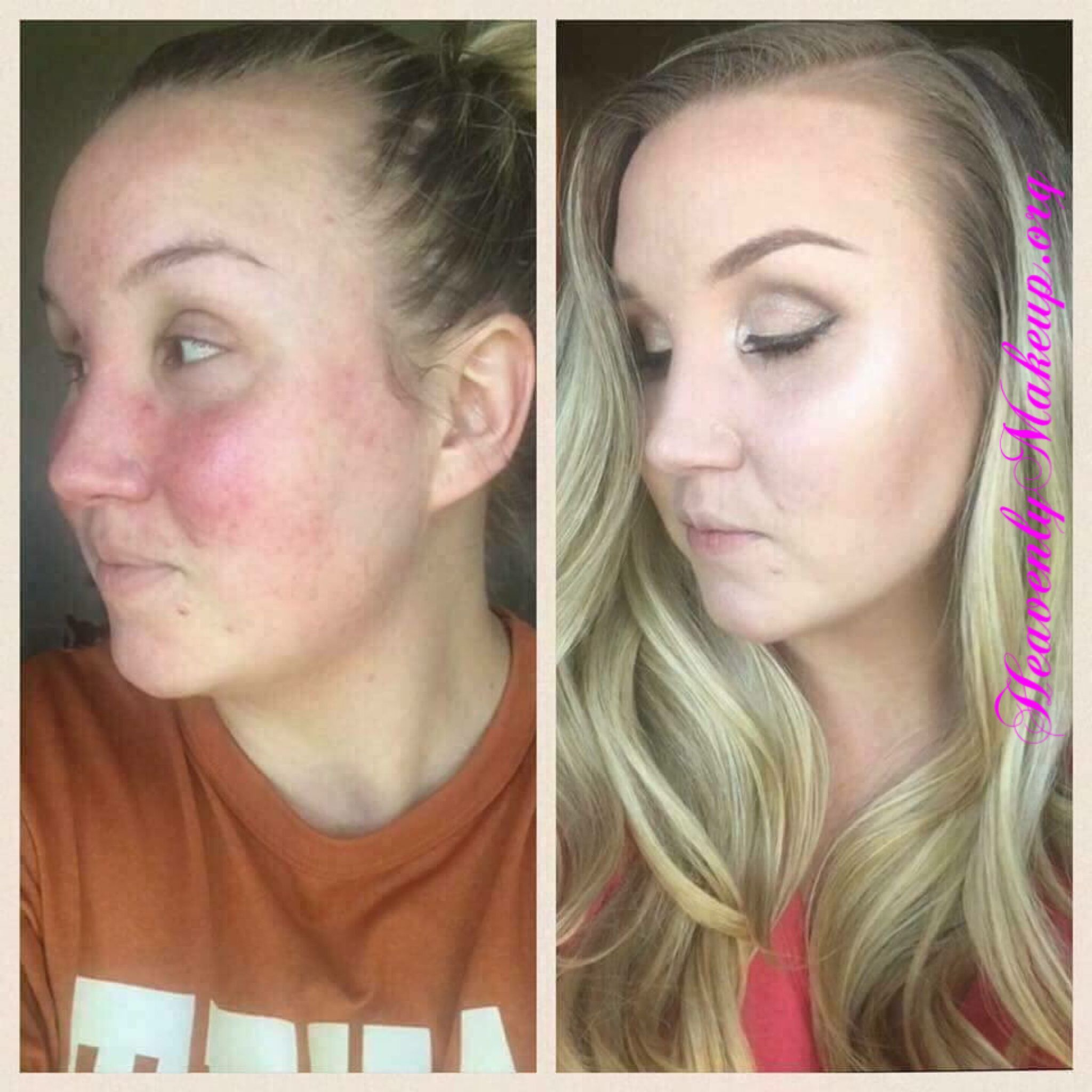 Do you have rosacea, acne, or other skin irritants you