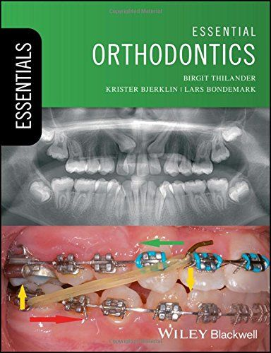 Orthodontic Therapy Ebook In 2020 Orthodontics Therapy Concept