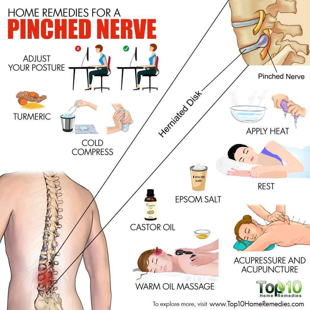 home remedies for a pinched nerve | back secrets | pinterest