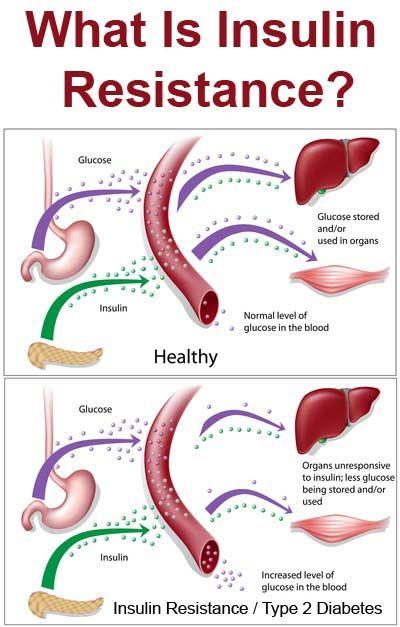 diabetes tipo 2 versus resistencia a la insulina