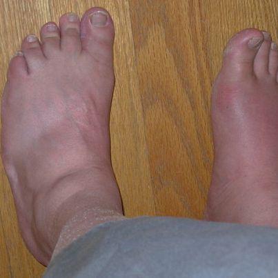 pseudogout knee pain using baking soda to reduce uric acid lower my uric acid level