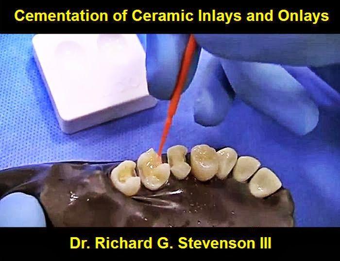 Cementation Of Ceramic Inlays And Onlays Dr Richard G Stevenson Iii Odonto Tv Odontologia