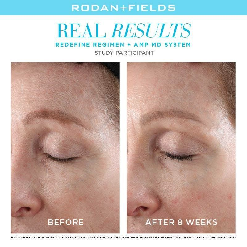 The Right Products Can Make A Difference At Any Age Skincare Redefine Amp Md Intensive Renewing Serum Rodan Rodan And Fields Rodan Redefine Regimen
