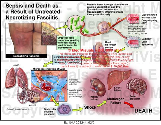 a study on necrotizing fasciitis or flesh eating disease Necrotizing fasciitis (nf) is a rapidly progressive infection that primarily affects the subcutaneous connective tissue planes (fascia), where it may quickly spread to involve adjacent soft tissue, leading to widespread necrosis (tissue death) several different types of flesh-eating bacteria may .