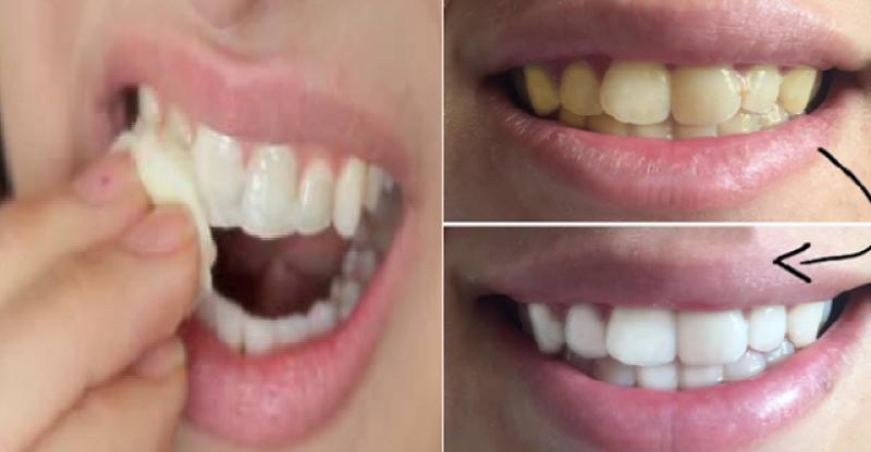 Gigi Kuning Tak Cantik Ini Cara Memutihkan Gigi Pakai Dua Bahan