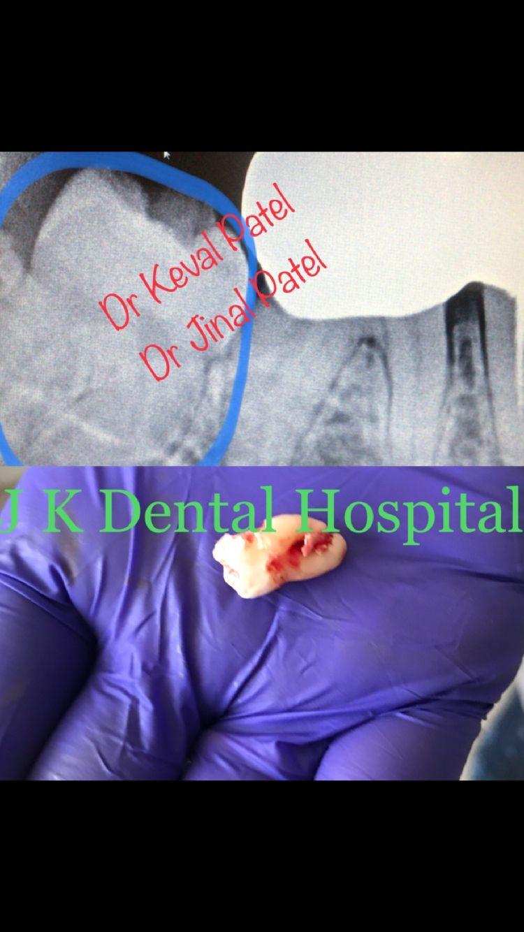 Judicious wisdom teeth health oralhealthmonthja