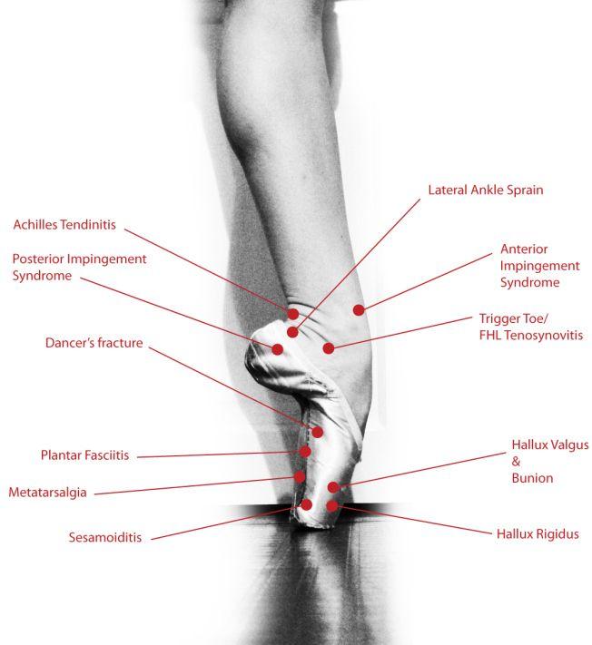 dance injury diagram the foot ekkor 2019 t�nc �s t�ncosok pinbeam backpack travel daypack foot