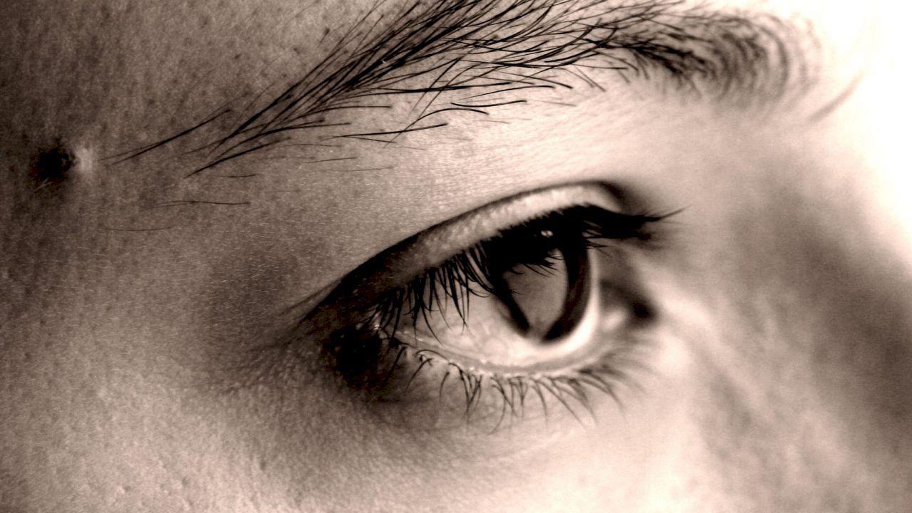 العين المحتقنة Eyes