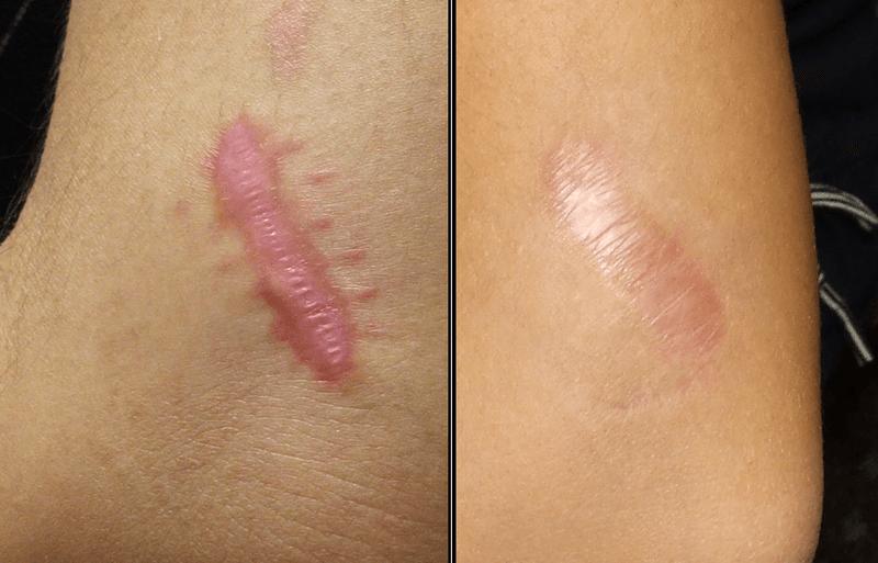 7 tratamentos caseiros e fáceis para eliminar uma cicatriz na pele ...