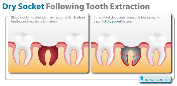 Dry socket is a painful procedure which cause after tooth