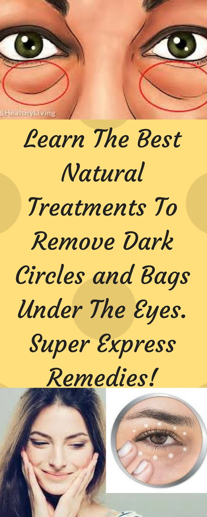 how to get rid of sunken eyes permanently