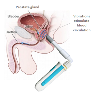 how to stimulate male prostate