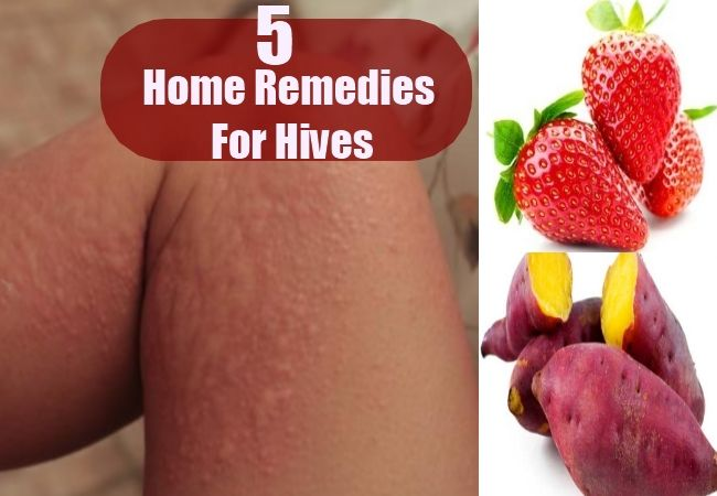 5 Home Remedies For Hives Hives Remedies Home Remedies