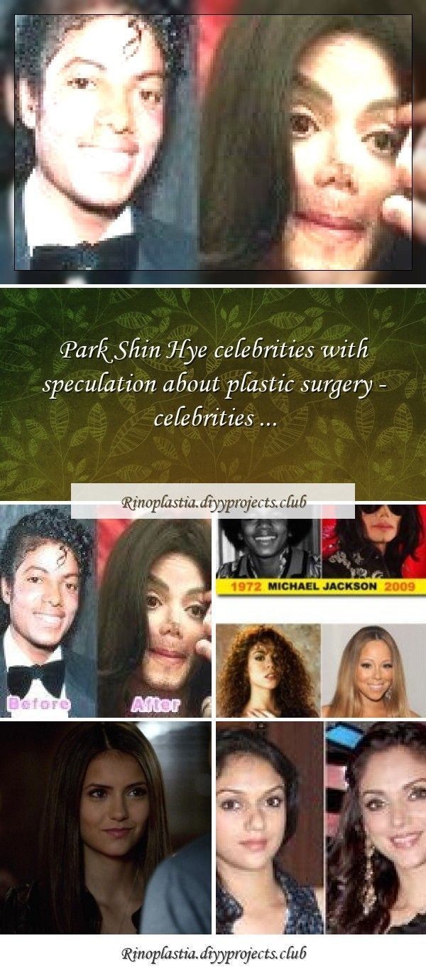 Some of famous celebrities nose job before and after photos. www.surgeryrhinopSo..., #beautifulcelebrities #Celebrities #celebritiesaesthetic #celebritiesbeforeandafter #celebritiesfemale #celebritiesfunny #celebritiesmale #celebritiesquotes #celebritiesstyle #celebritieswithoutmakeup #Famous #famouscelebrities #Job #Nose #Photos #wwwsurgeryrhinopSo