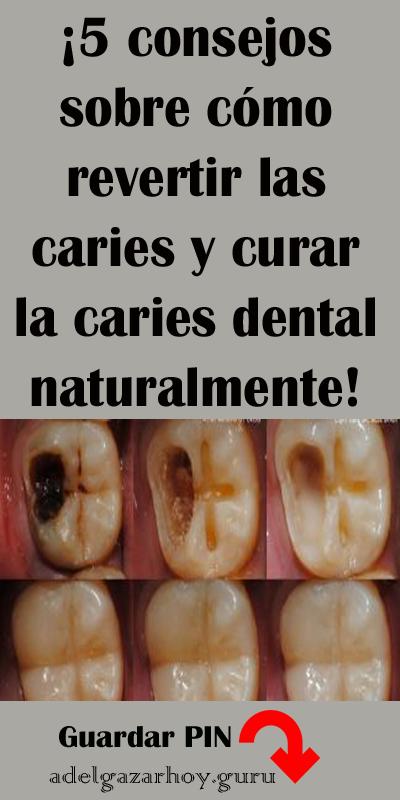 5 Consejos Sobre Cómo Revertir Las Caries Y Curar La Caries Dental Naturalmente Consejos Caries Cariesdental Remedios Dental Remedies Natural Remedies