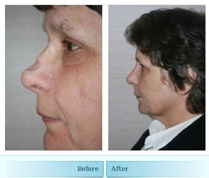 Reconstructive Septorhinoplasty This Women Underwent Surgical Removal Of A Nasal Tumour She Had A Skin Graft Skin Grafting Rhinoplasty Surgery Rhinoplasty