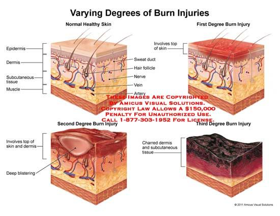 Found On Bing From Www Medicalexhibits Com Subcutaneous Tissue Types Of Burns Degree Burns