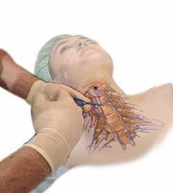 Imagenes de hernia de disco cervical