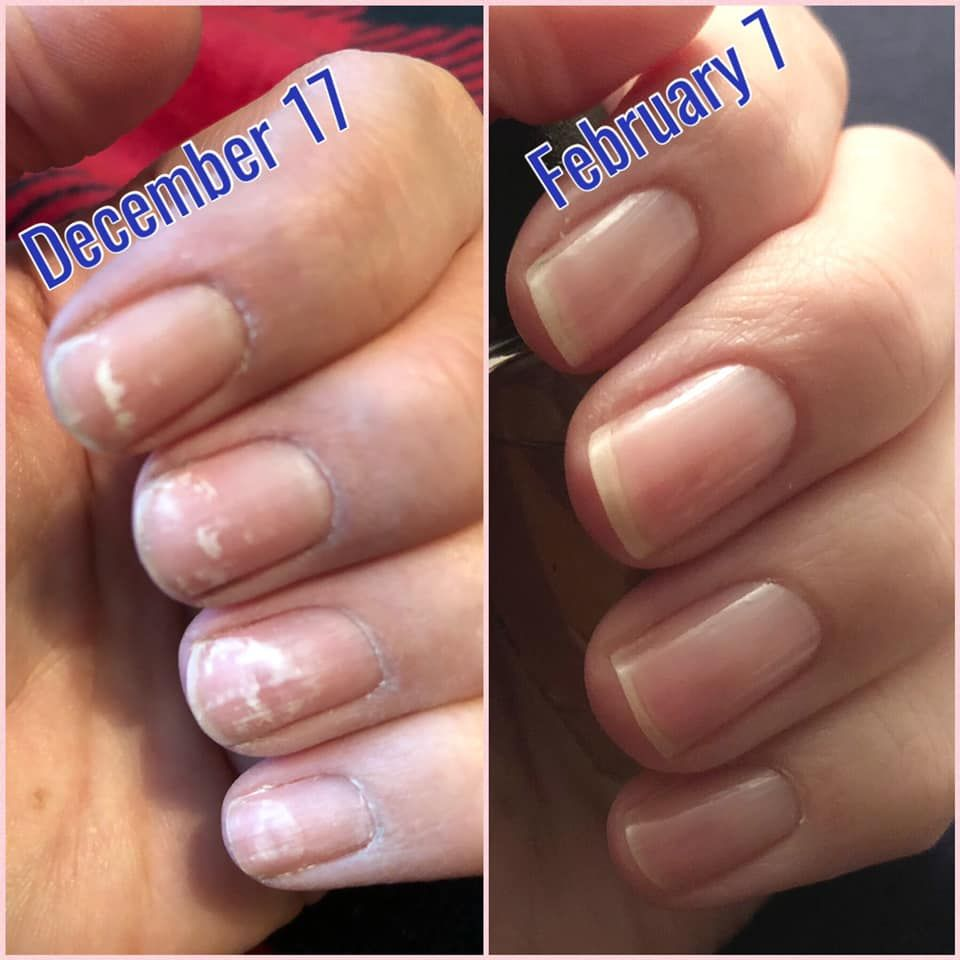 December 17th Damaged Nails From Gel Polish On February 7th