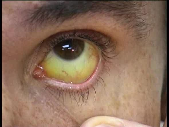 These Home Remedies For Jaundice Are Unbelievable Httpwww - Best home remedies for jaundice its causes and symptoms