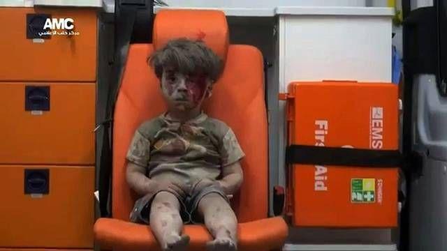 Raunioista pelastettu pikkupoika antoi kasvot syyrialaisten hädälle - ESS.fi