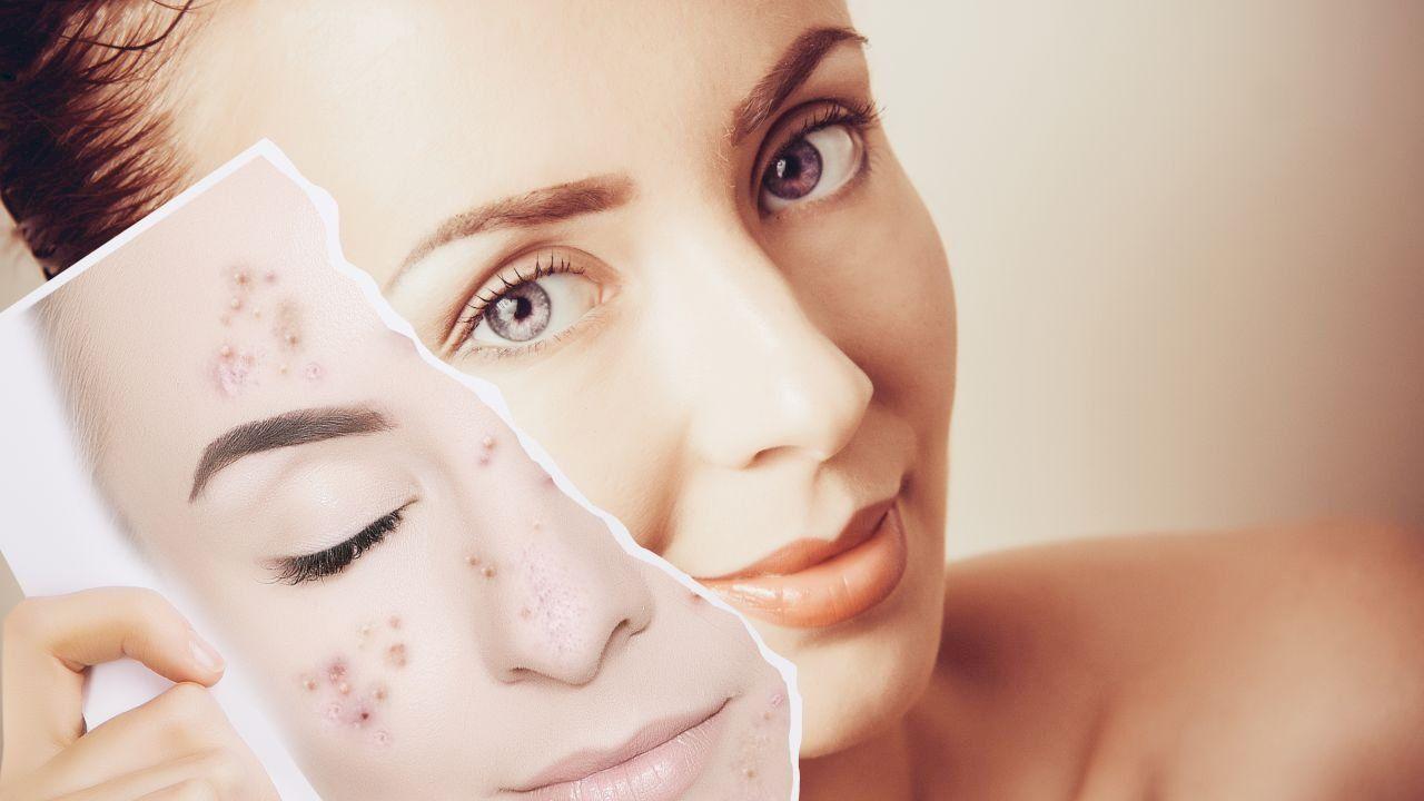 طريقة إزالة حب الشباب Korean Beauty Tips Acne Prescription Prescription Acne Medication