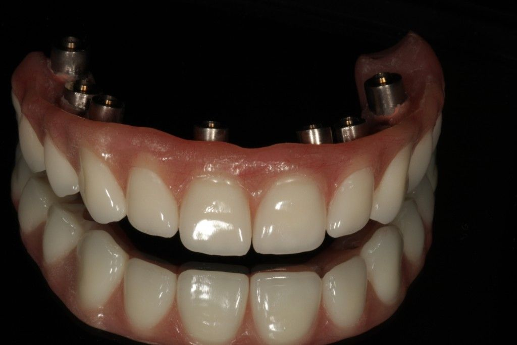 Want to replace all your teeth on the top or bottom but ...