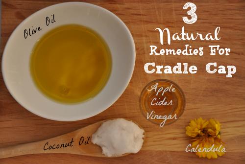 3 Natural Remedies For Cradle Cap Natural Parenting