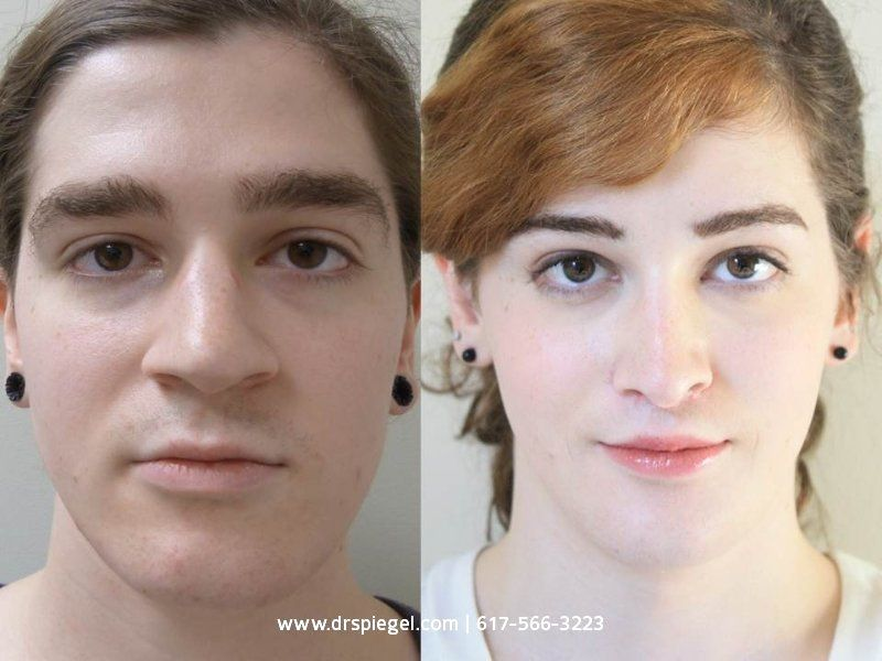 Male To Female Transgender Before And After  Facial -1267