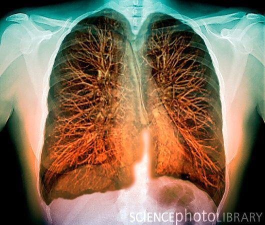Los pulmones vistos con RMN coloreada. | Imágenes de medicina y ...