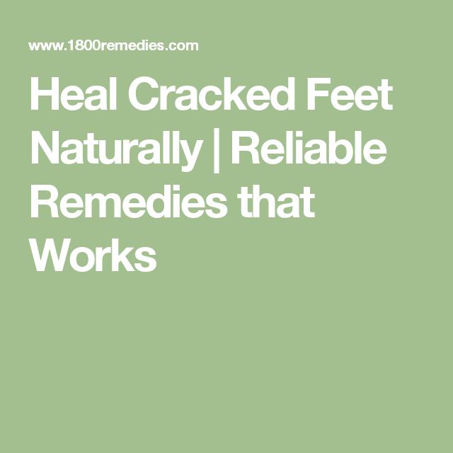 Cracked Feet, Healing, Remedies