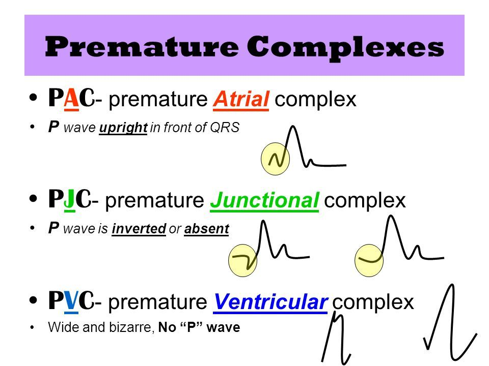 Image Gallery Of Premature Atrial Contractions Vs
