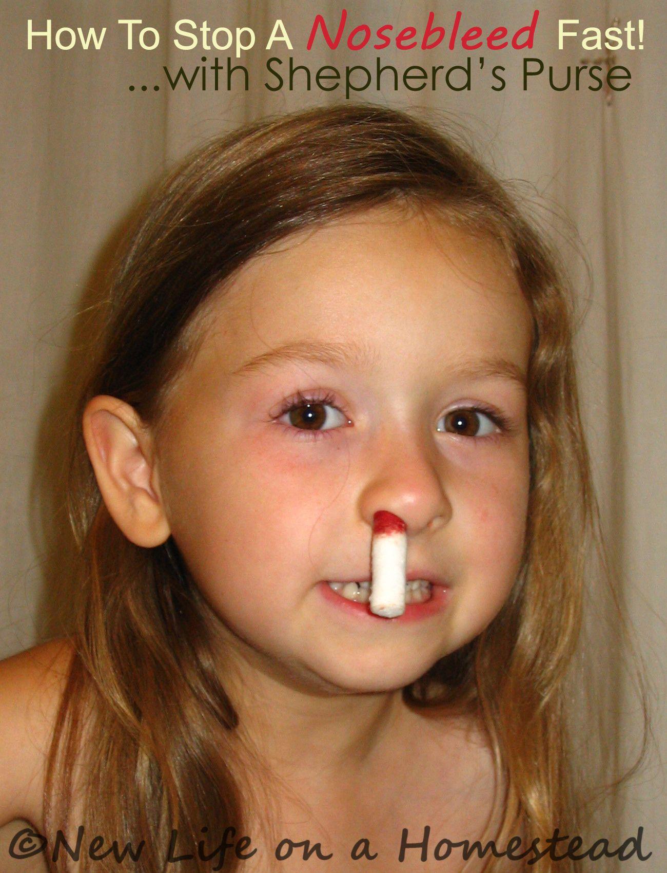 Effective ways to quickly stop nosebleeds