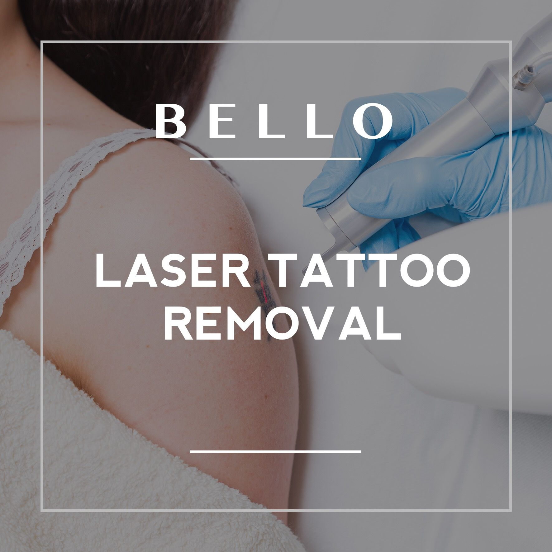 Tattoo Removal by Jodie Houston HALF PRICE Call or Text to