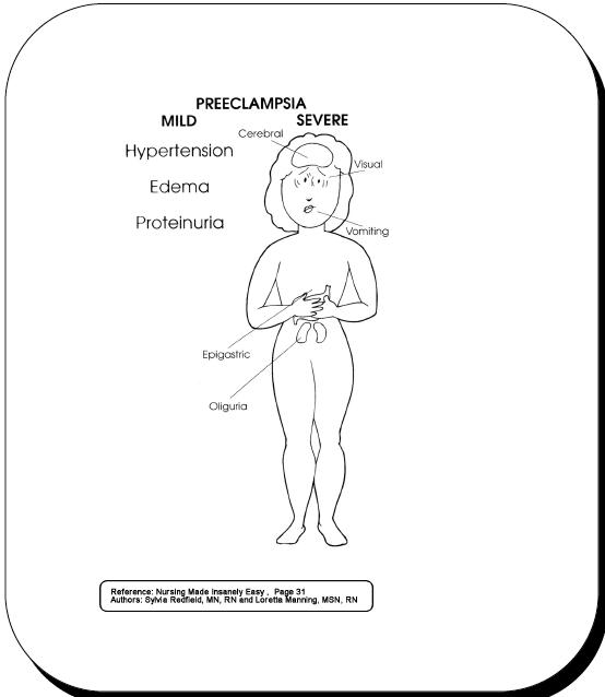 preecl sia nurse pinterest ob nursing nursing students and ER RN Resume Sample preecl sia