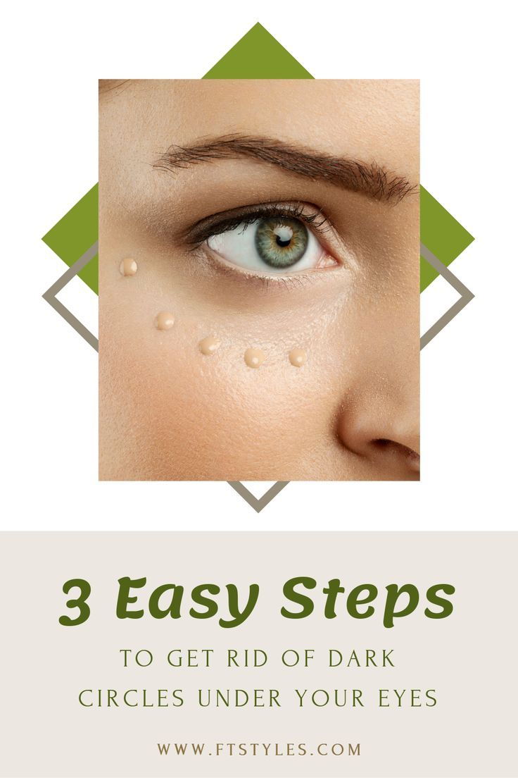 3 Easy Steps to Get Rid of Dark Circles Under your Eyes ...