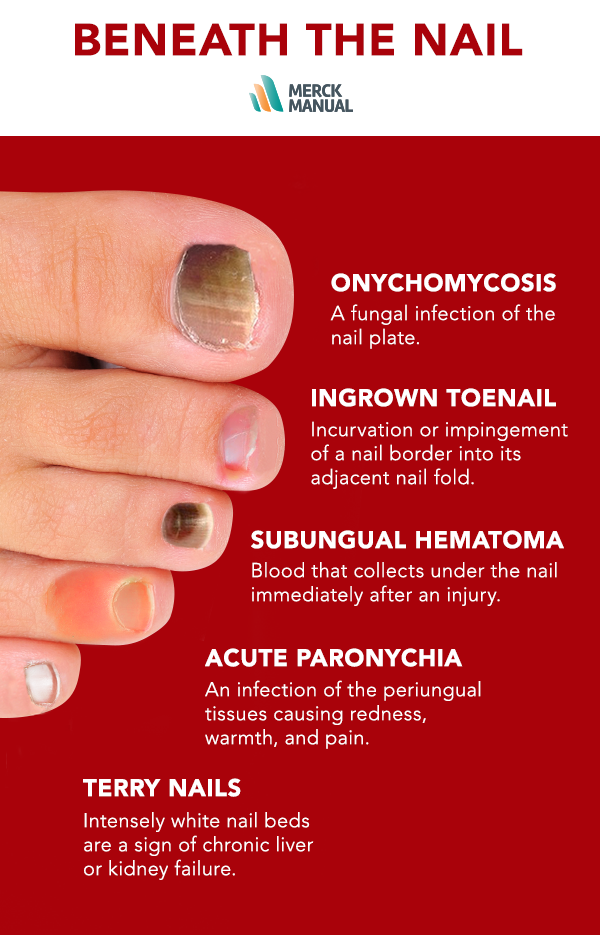Learn more about what\'s going on beneath the nail. | Knowing Your ...