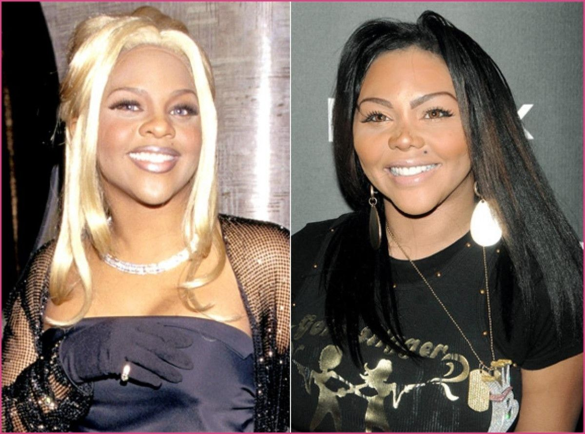 Lil Kim Plastic Surgery Before And After LOADTVE