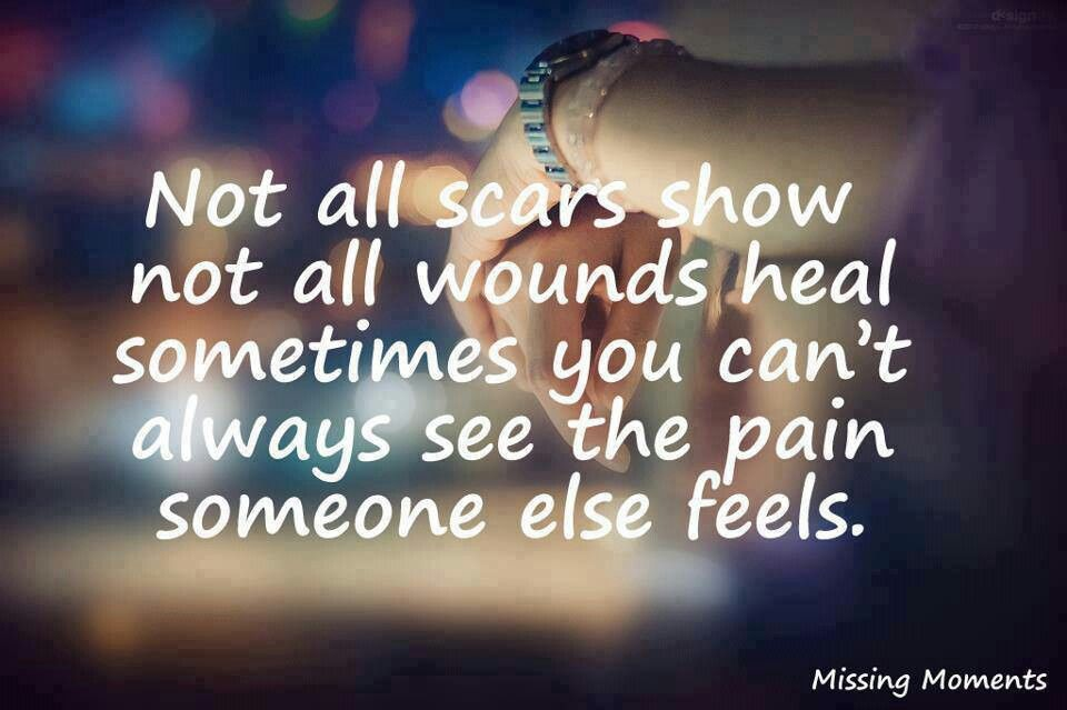 Not All Scars Show Not All Wounds Heal. Sometimes You Canu0027t Always See The  Pain Someone Feels.
