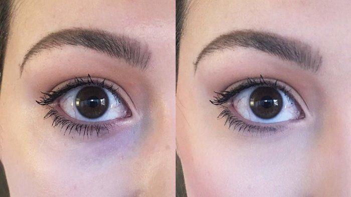I Tried Kim Kardashian's Trick for Making Dark Under Eye Circles Disappear