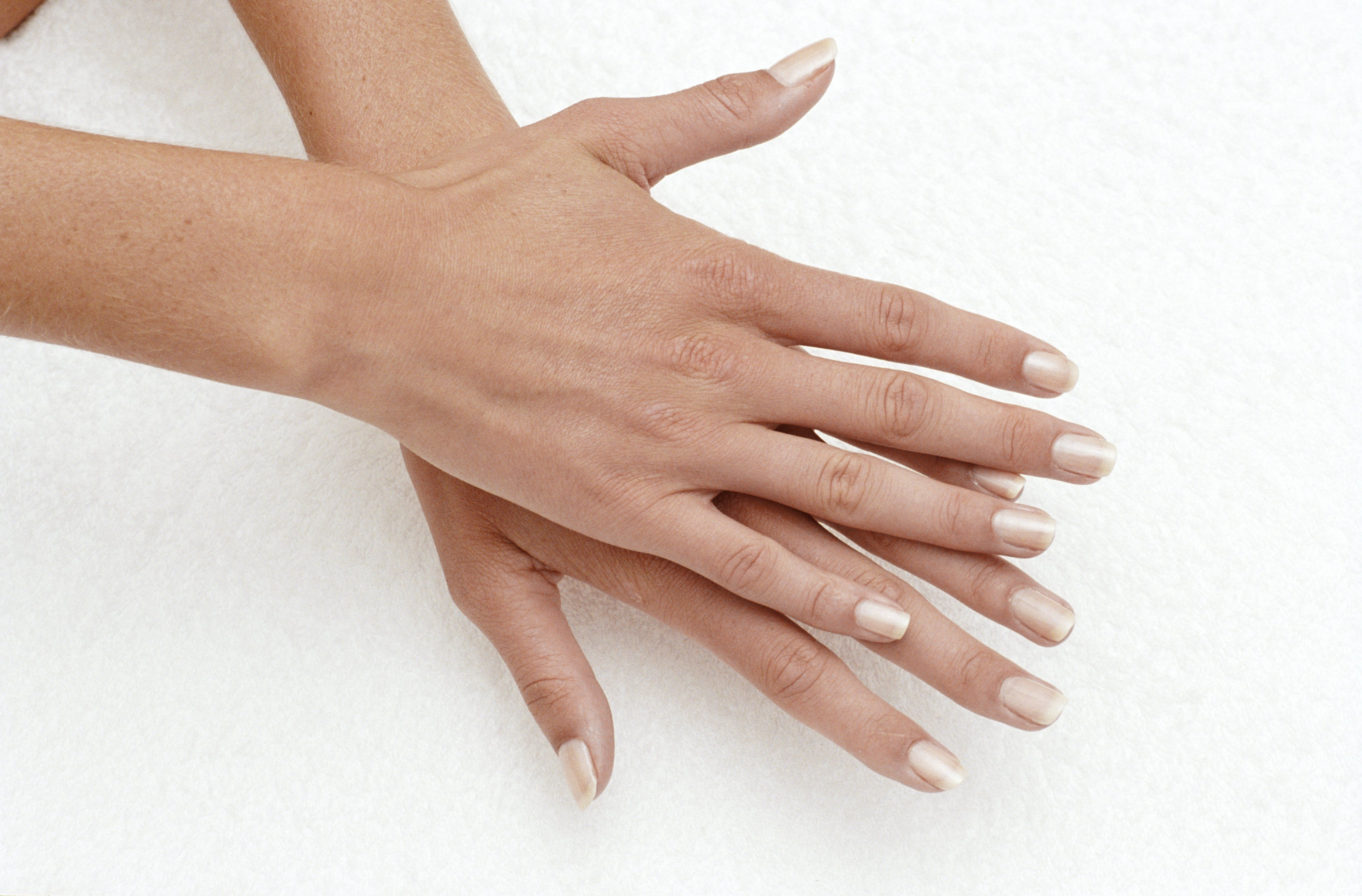 3 Vitamin Deficiencies That Can Affect The Health Of Your Nails Remove Acrylic Nails Fake Nails Peeling Nails
