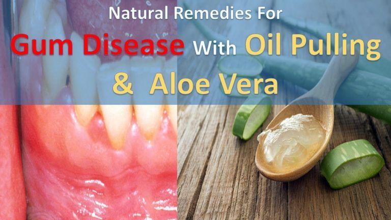Aloe verahomeremediesforperiodontaldisease remedies