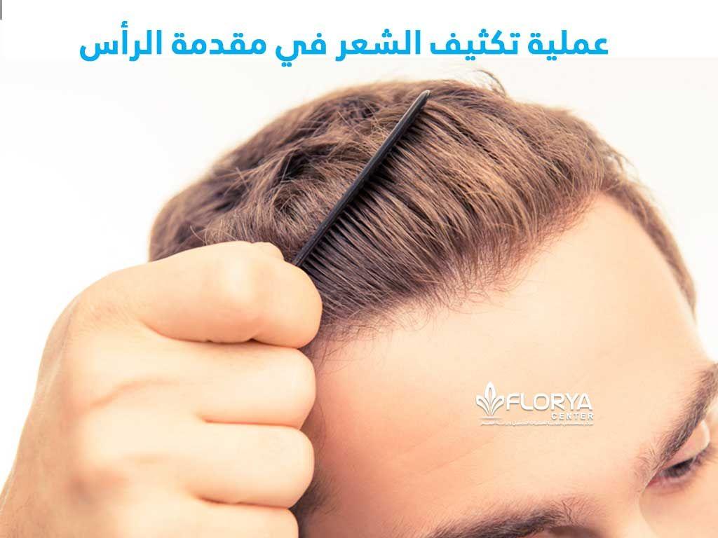 زراعة الشعر و عملية تكثيف الشعر في مقدمة الرأس مشكلة الصلع وتساقط الشعر أصبحت منتشرة جدا وخاصة في مقدمة الرأس ويعاني منها العديد لذلك يلجأ الكثيرون لاجراء عمل