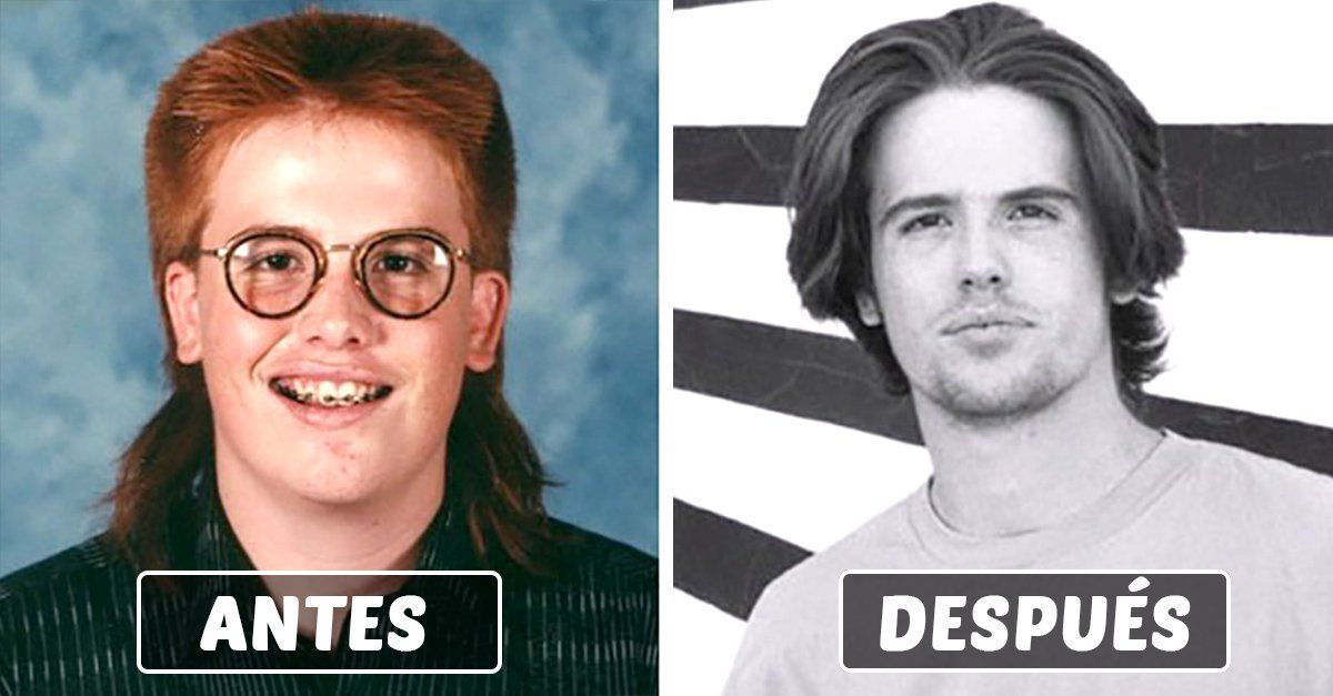 """15 fotos de transformaciones de la pubertad al estilo """"patitito feo que se convirtió en cisne"""", que prueban que esta solo es una etapa pero todo mejorará."""
