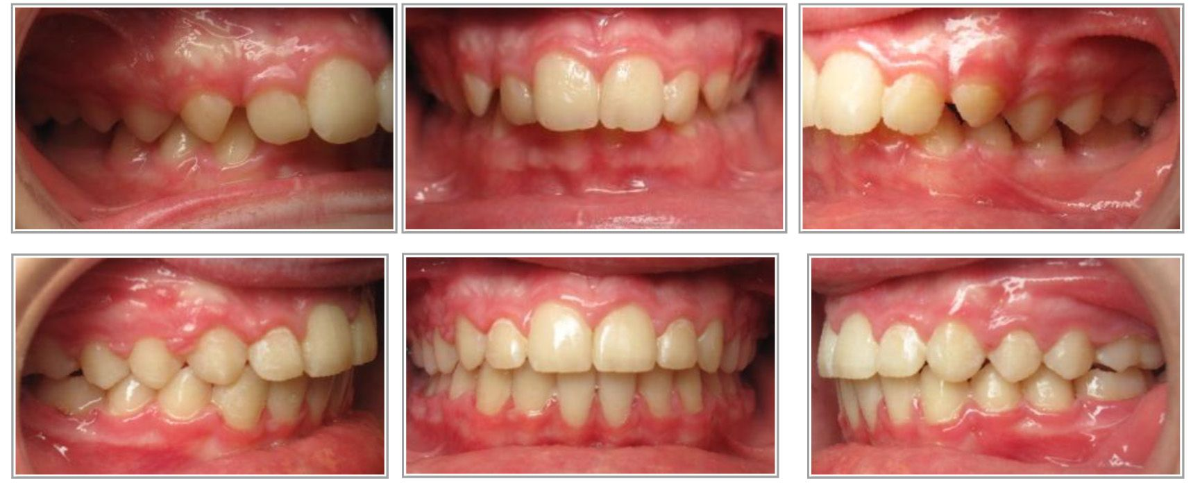 Correction of an overbite and overjet by Dr. Kendra Pratt
